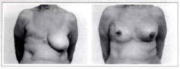 Resultado de imagem para mastectomia reconstrução da mama