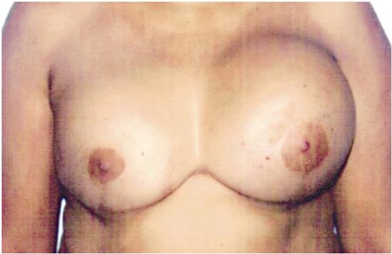 Como aumentar uma aptidão de peito