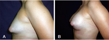 1c89e365527d4 RBCP - Treatment of tuberous breast with combined incisions