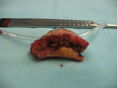 Rbcp Hidradenitis Suppurativa Acne Inversa Review Of