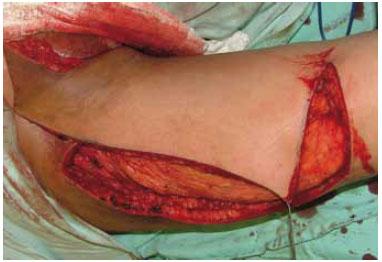 Seroma tardio no dorso após reconstrução de mama