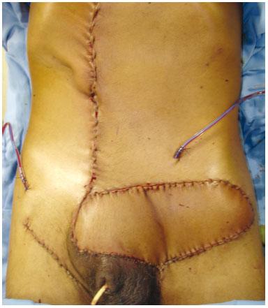 Reconstruo Mamria em Cirurgia Conservadora com Retalhos