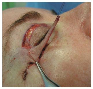 Cirurgia para retirada de brinquedo erotico do cu - 3 part 9