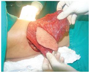 breast reconstruction latissimus dorsi flap
