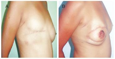 Breast reconstruction tran flap