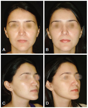 RBCP - Treatment of nasal valves in secondary rhinoplasty