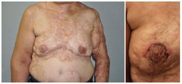 Left End Result Of Nipple And Right Areolar Reconstruction Using A Skin Graft Right Graft On Postoperative Day