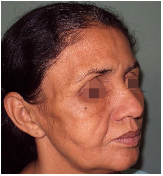 RBCP - Barraquer-Simons syndrome: literature review and case report