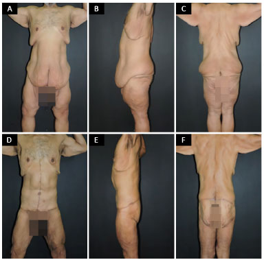 RBCP - Circumferential excisions in the trunk and