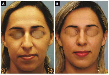 RBCP - Perception of nasal reduction by radix and tip